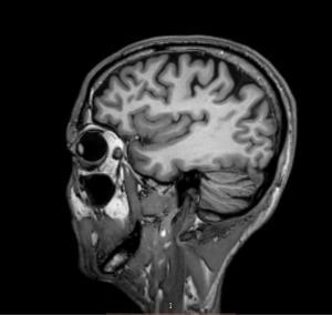 MRI scan 1 - 17 mei 2017