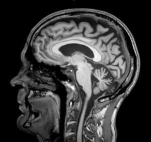 MRI scan 2 - 17 mei 2017